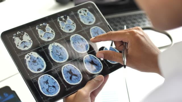 vidéos et rushes de main close-up de docteur utilisant la tablette numérique et l'analyse à l'hôpital - image par résonance magnétique