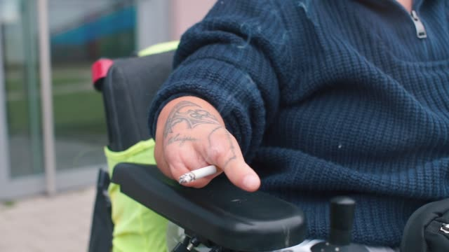 Closeup of a stump of the hands of a disabled person with a cigarette.