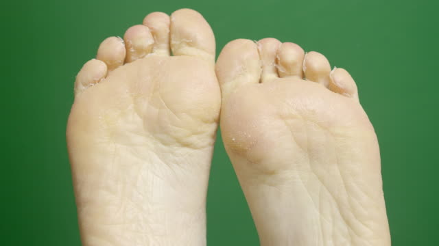 close-up of female foots during dermatology treatment spa procedures on the green chroma-key backdrop. - dito del piede video stock e b–roll