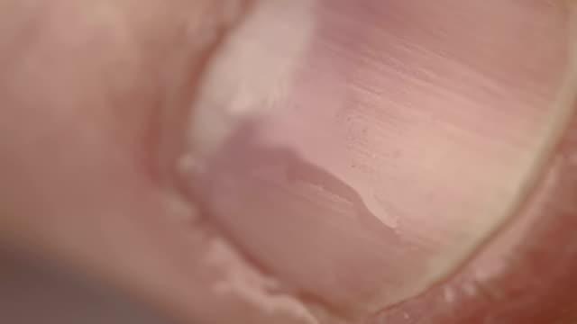 closeup of male thumb nail - pollice parte del corpo video stock e b–roll