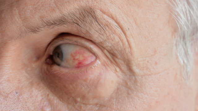 closeup of old man with red eye inflammation caused by infection or high blood pressure closeup of old man with red eye inflammation caused by infection or high blood pressure. close-up 4k video footage ophthalmologist stock videos & royalty-free footage