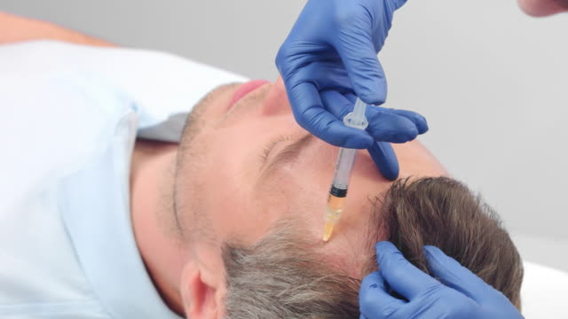 Close-up of Platelet Rich Plasma treatment for hair rejuvenation video