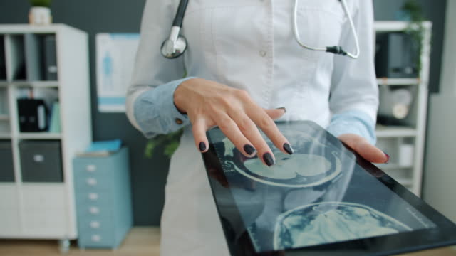 Close-up of woman's hand touching tablet screen with MRI images, doctor working in office