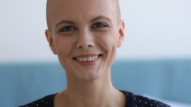 Closeup portrait bald attractive woman recovered from oncology disease Cancer Survivors Day concept. Close up view face portrait of bald caucasian attractive woman looking at camera having charming wide smile, girl recovered from oncology disease feels happy pose indoors cancer patient stock videos & royalty-free footage