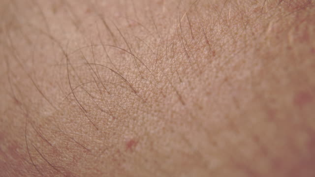 Close-up skin of a Caucasian with hair and a moles Close-up skin of a Caucasian with hair and a moles. Macro shot. goosebumps stock videos & royalty-free footage