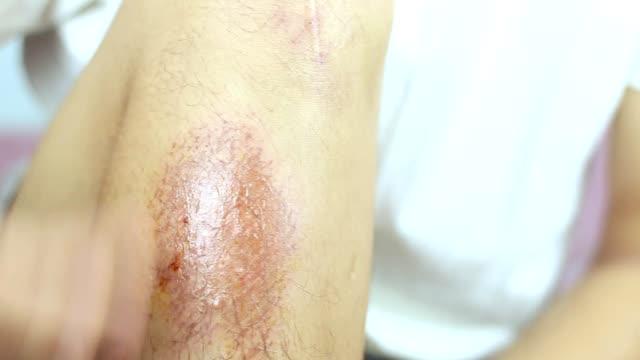 close-up view of hind legs after the accident, traumatic pain, burns. - rana filmów i materiałów b-roll
