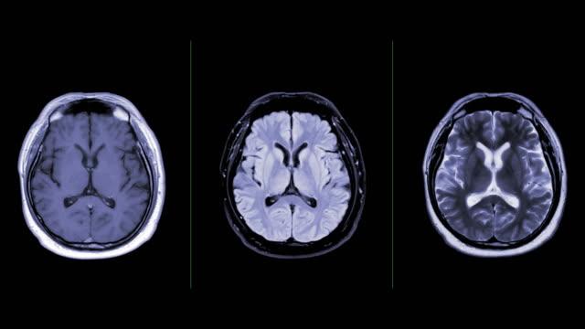 vidéos et rushes de collection de vue axial de cerveau d'irm pour détecter la maladie d'avc et le covid-19. - image par résonance magnétique