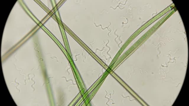 colony of bacteria spirochetes under a microscope - mikrobiologia filmów i materiałów b-roll