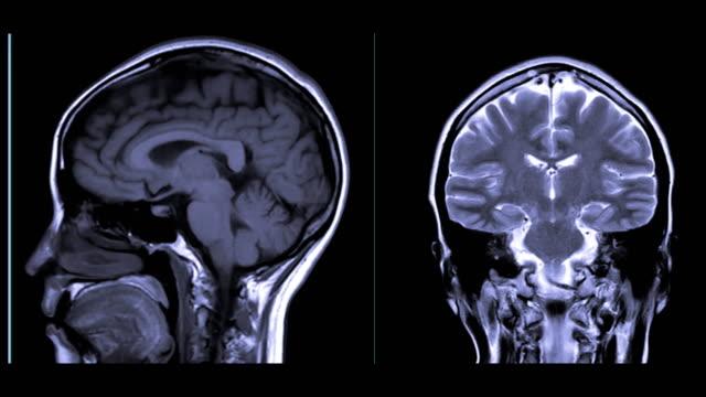 vidéos et rushes de comparaison mri du plan sagittal et coronal de cerveau pour détecter une série de conditions du cerveau telles que des kystes, des tumeurs, des saignements, le gonflement, des anomalies développementales et structurales. - caillot sanguin