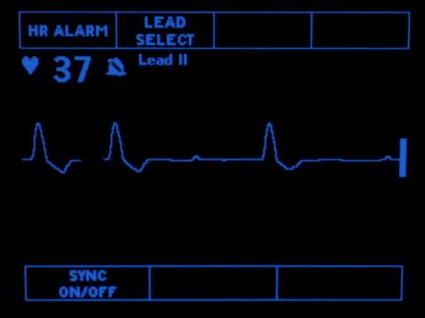 Complete Heart Block video