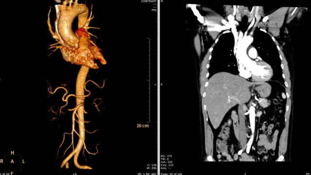 vídeos y material grabado en eventos de stock de computada (cta) la angiografía tomográfica de renderizado 3d de aorta torácica vs coronal plano. - arteriograma