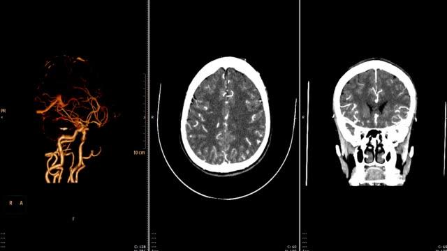 vídeos de stock e filmes b-roll de computed tomography angiography, cta  of the brain. - arteriograma