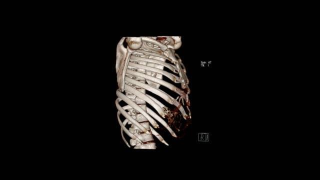 torasik kafesin bilgisayarlı tomografi hacim görüntüleme muayenesi (ct vr torasik kafes). - i̇nsan i̇skeleti stok videoları ve detay görüntü çekimi
