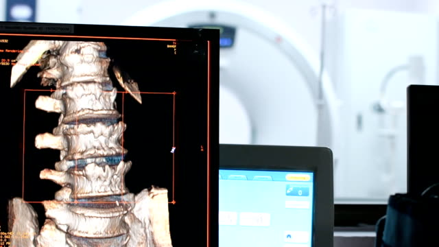 Computer image of the Lumbar spine fracture  on CT scanner display, video