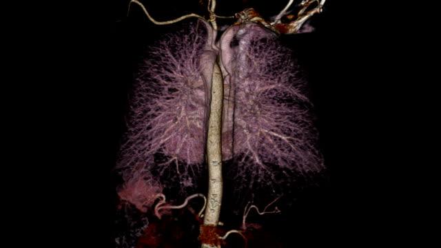 Computerized Tomography Angiogram video