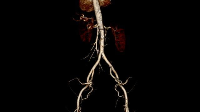 vídeos de stock e filmes b-roll de tomografia computerized angiograma - aorta