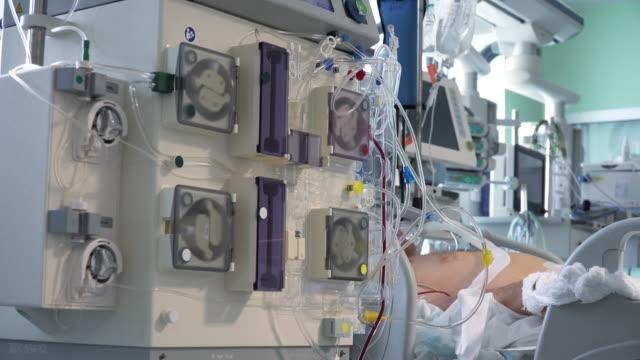 vídeos de stock, filmes e b-roll de diálise de continious procedimento médico realizando na uti - diálise