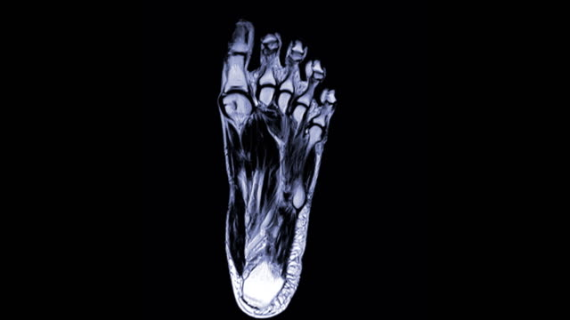 MRI FOOT Coronal T2W . MRI FOOT Coronal T2W for diagnostic tendon of foot  injury. ankle stock videos & royalty-free footage