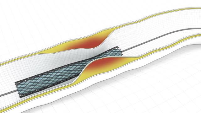 procedura di angioplastica coronarica-fumetto stent con catetere di ricerca - tubo flessibile video stock e b–roll