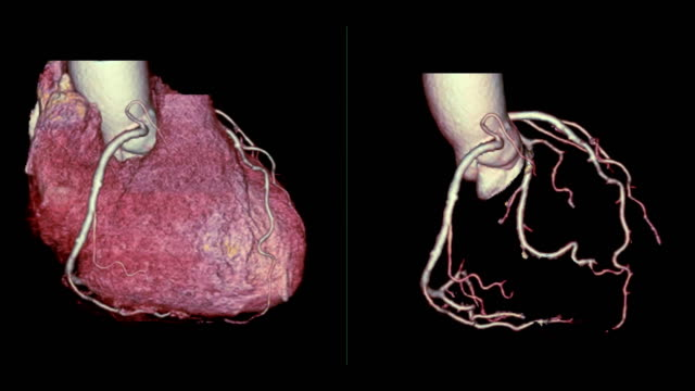 CTA Coronary artery 3D rendering image compare heart 3D and Coronary artery 3D turn around on the screen for diagnosis of vessel coronary artery stenosis . CTA Coronary artery 3D rendering image compare heart 3D and Coronary artery 3D turn around on the screen for diagnosis of vessel coronary artery stenosis . real life stock videos & royalty-free footage