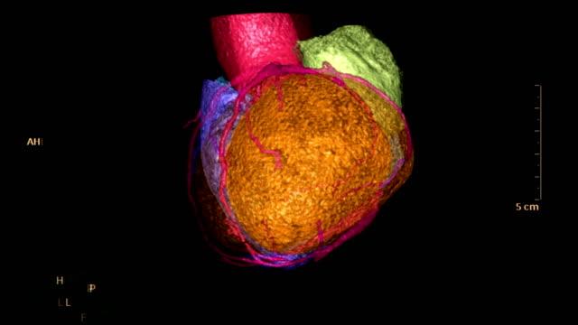 vídeos de stock e filmes b-roll de cta coronary artery  3d rendering image of the colorful heart for finding heart disease . - arteriograma