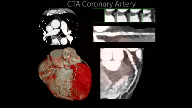 CTA Coronary artery  3D rendering image of the realistic heart for finding heart disease . CTA Coronary artery  3D rendering image of the realistic heart for finding heart disease . arteriogram stock videos & royalty-free footage