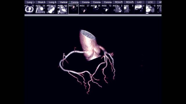CTA Coronary artery 3D rendering image or coronary tree turn around on the screen . CTA Coronary artery 3D rendering image or coronary tree turn around on the screen for diagnosis of vessel coronary artery stenosis . arteriogram stock videos & royalty-free footage