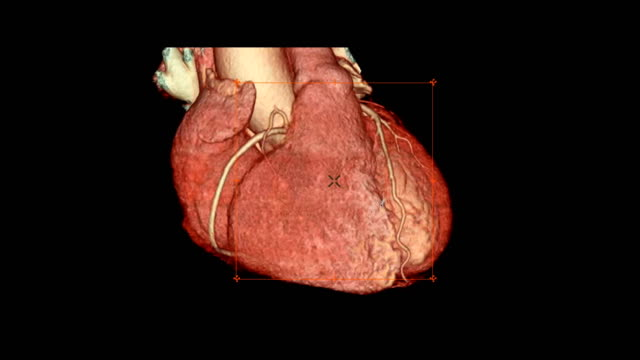 CTA Coronary artery 3D rendering image turn around on the screen for diagnosis of vessel coronary artery stenosis . CTA Coronary artery 3D rendering image turn around on the screen for diagnosis of vessel coronary artery stenosis . arteriogram stock videos & royalty-free footage