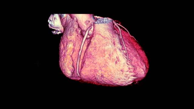 vídeos de stock e filmes b-roll de cta coronary artery 3d rendering image turn around on the screen for diagnosis of vessel coronary artery stenosis . - aorta