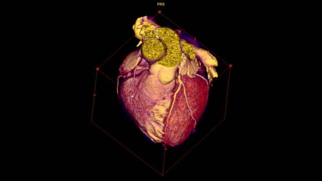 vídeos de stock e filmes b-roll de cta coronary artery 3d rendering image turn around on the screen for finding heart vessel disease . - tomografia