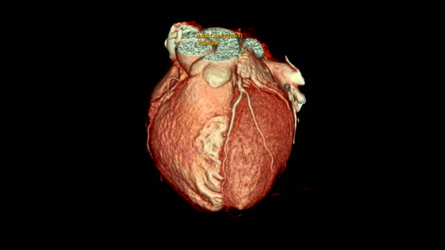 vídeos de stock e filmes b-roll de cta coronary artery 3d rendering image turn around on the screen for finding heart vessel disease . - pulmão humano