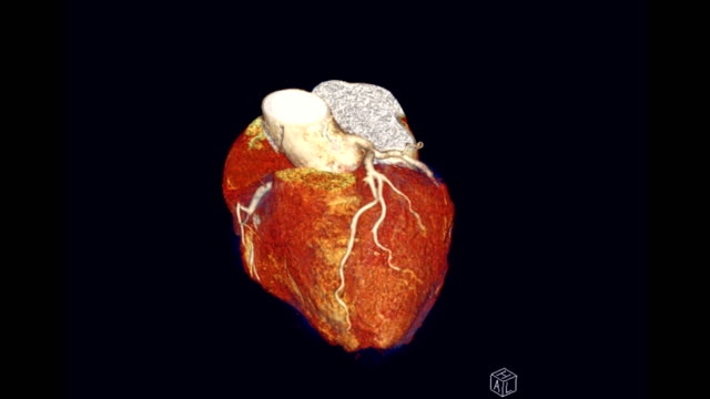 CTA Coronary Artery 3D rendering showing heart with vessel Coronary Artery turn around on the screen. CTA Coronary Artery 3D rendering showing heart with vessel Coronary Artery turn around on the screen. arteriogram stock videos & royalty-free footage