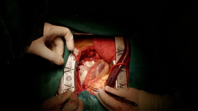 vídeos de stock, filmes e b-roll de artéria coronária bypass grafting - marcapasso cirurgia cardíaca