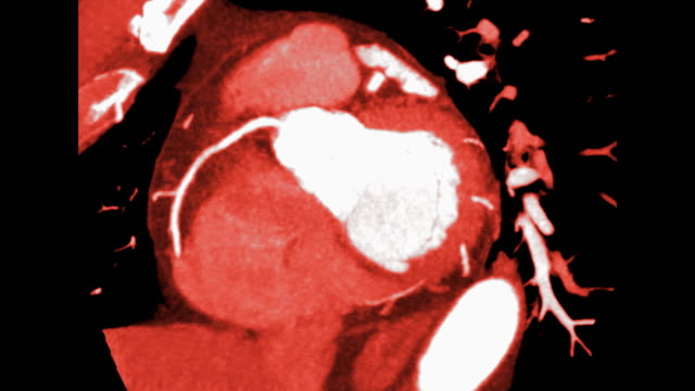CTA Coronary artery short axis view with MIP method for Detect coronary artery disease. CTA Coronary artery short axis view with MIP method for Detect coronary artery disease. arteriogram stock videos & royalty-free footage
