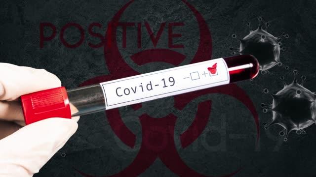 vidéos et rushes de coronavirus (covid-19) test sanguin positif - expression positive