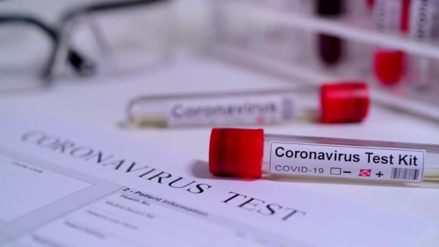 코로나 바이러스 covid 19 테스트 소설 코로나 바이러스 - covid testing 스톡 비디오 및 b-롤 화면