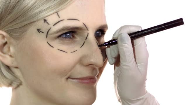 stockvideo's en b-roll-footage met hd: cosmetic surgeon drawing marks on face - ooglid