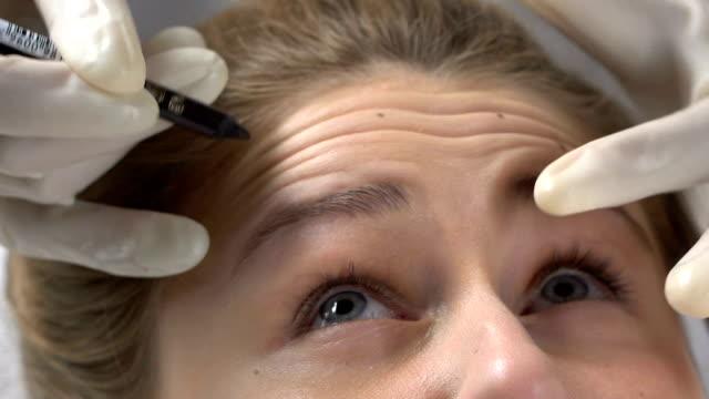 косметолог маркировки морщин на лбу перед инъекцией наполнителя, совершенство кожи - морщинистый стоковые видео и кадры b-roll