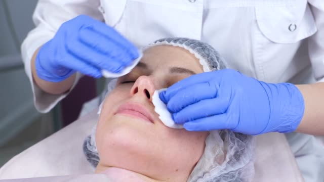 Cosmetologist wipes the face of a young woman with cotton pads. Cosmetologist wipes the face of a young woman with cotton pads. Hands of the beautician in gloves and a face closeup. Beauty treatments for the face. beautician stock videos & royalty-free footage