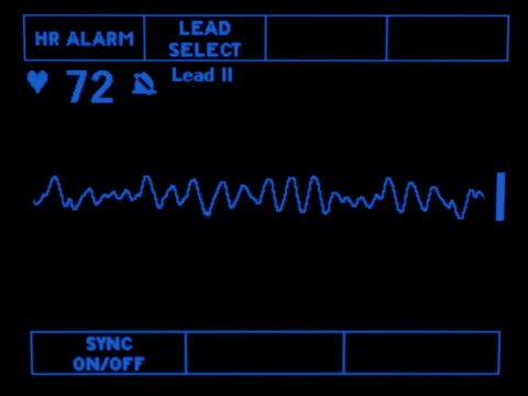 Course Ventricular Fib A simulated monitor showing the course ventricular fib rhythm. defibrillator stock videos & royalty-free footage