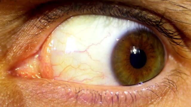 Crazy Eye Rotation Of The Eyeball video
