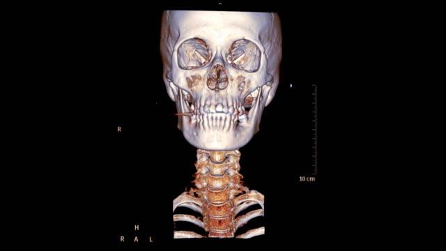 ct c-omurga veya servikal omurga 3d render görüntü. - i̇nsan i̇skeleti stok videoları ve detay görüntü çekimi