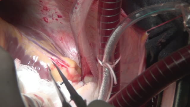 vídeos de stock e filmes b-roll de cut heart plane by surgeon professional doctor unique macro video in clinic. - artéria coronária