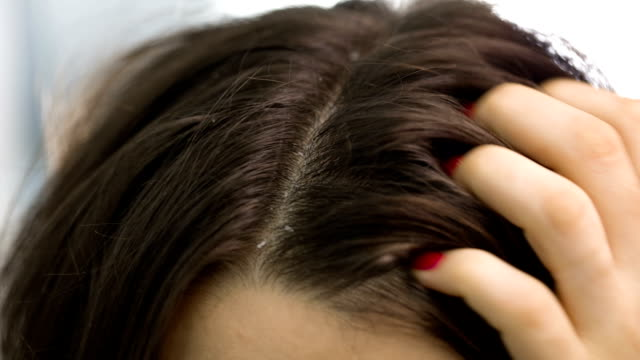Dander that causes itching scalp video