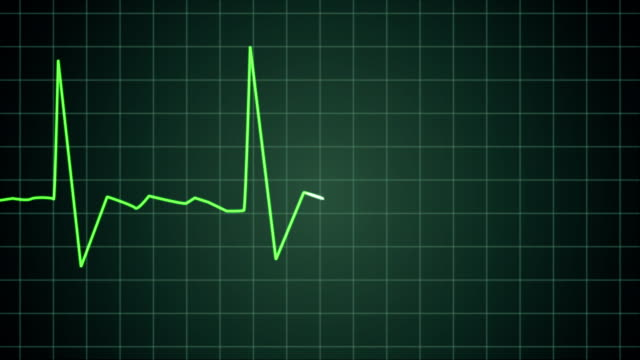 Death: EKG heart monitor goes flatline (4K) An Electrocardiogram (EKG or ECG) showing pulsating hearth beat. The beat slows down and flatlines. Which shows someone dying. Green monitor with green pulse line. Video with audio. Smooth animation rendered in full progressive 4K. Also in other variations in my portfolio. pulse trace stock videos & royalty-free footage