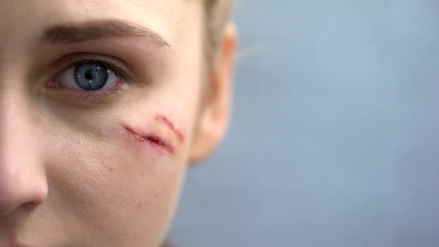 Defenseless female with scars on her face looking into camera, domestic violence