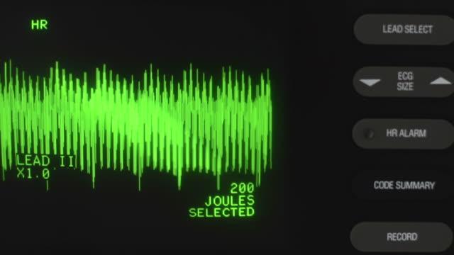 Defibrillator Noise ECG waveform running on Defibrillator. defibrillator stock videos & royalty-free footage
