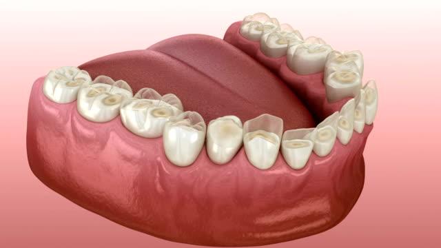 diş yıpratma (bruksizm) diş dokusu kaybına neden olur.  tıbbi olarak doğru diş 3d animasyon - diş sağlığı stok videoları ve detay görüntü çekimi