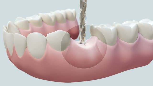 HD: Dental Implant Bright video