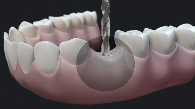 HD: Dental Implant Dark video